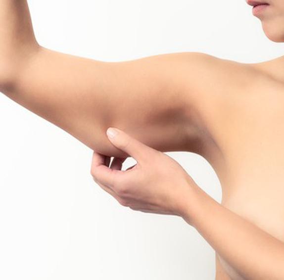 Брахиопластика, провиване на кожата на ръцете