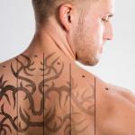 Отстраняване на татуировки