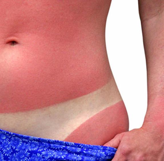 Последствия от претърпяни изгаряния