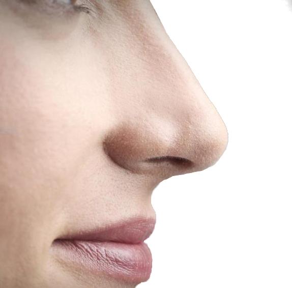 Ринопластика - хирургия за нос