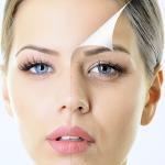 фейслифтинг -пластична и естетична хирургия