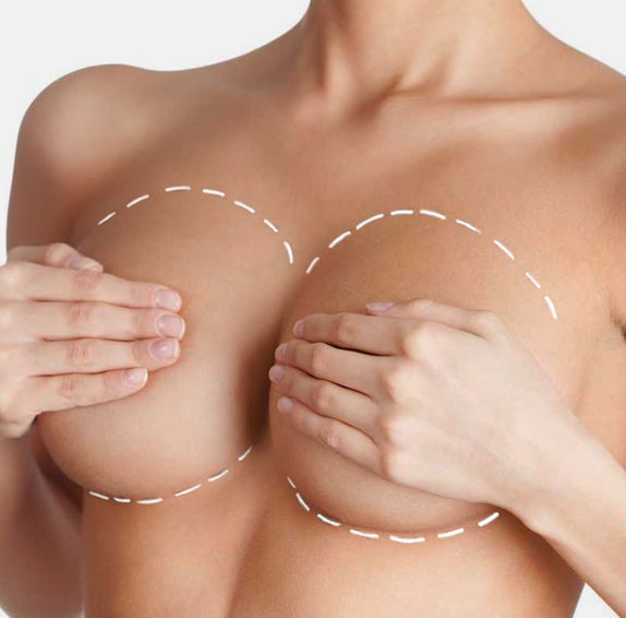 Увеличаване на бюста с импланти